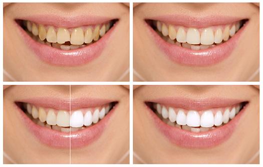 Teeth Broken